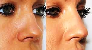 nose shape 3.jpg