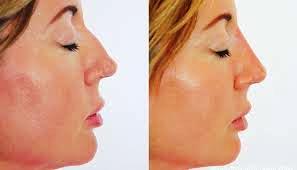 nose shape 4.jpg