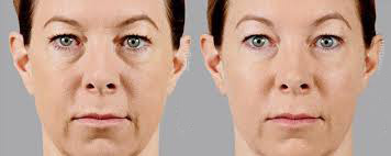face shape and conturing 2.jpg