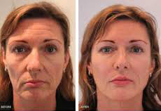 face shape and conturing 4.jpg