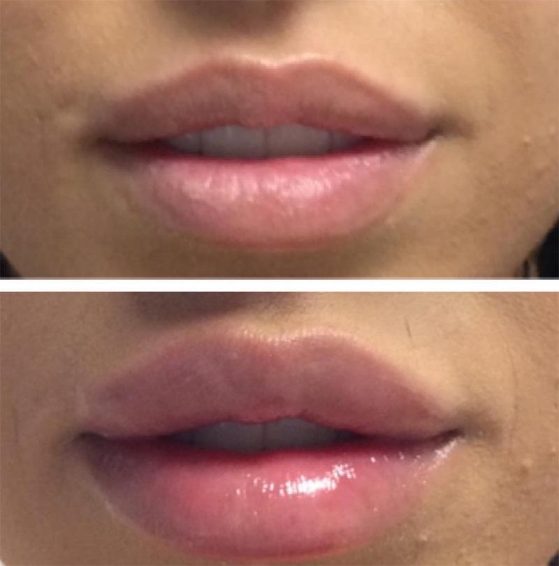 lips_01.jpg