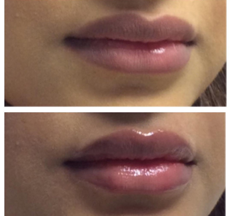 lips_03.jpg