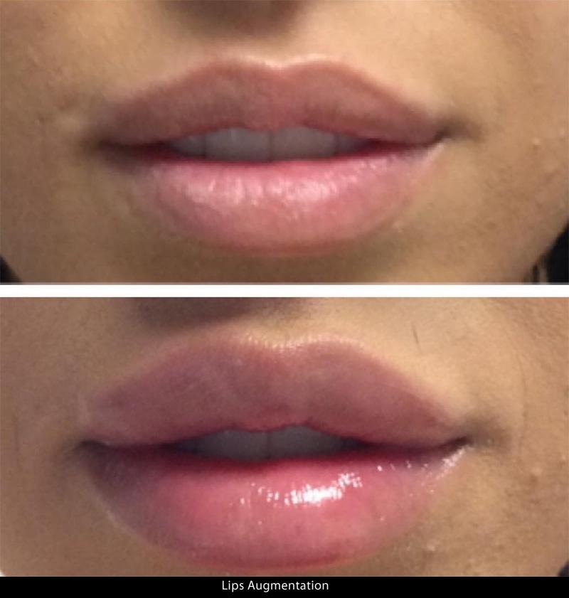 lips_01a.jpg