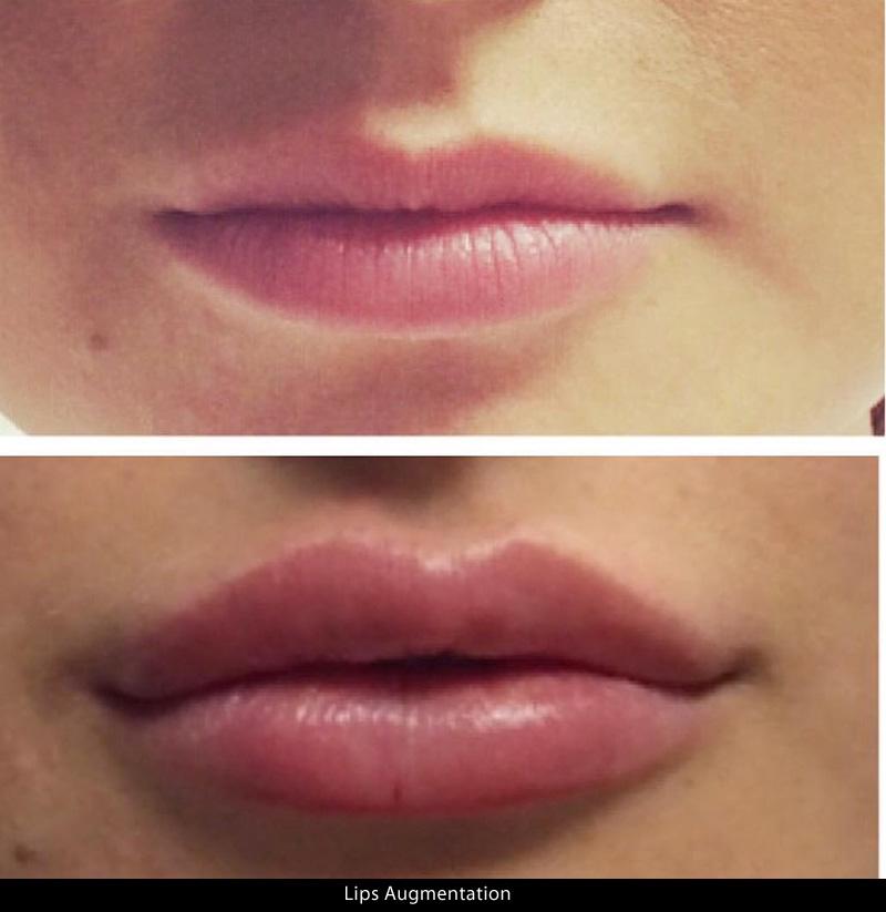lips_02a.jpg