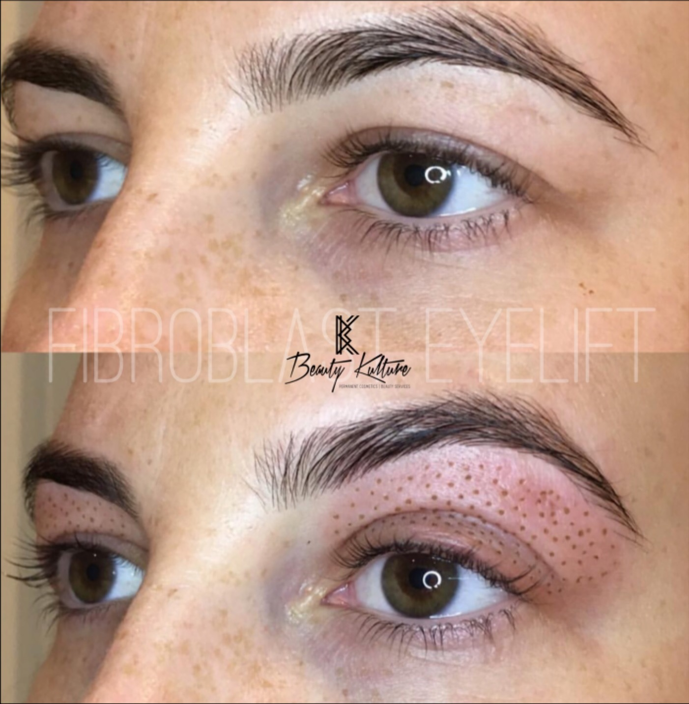 Eyelid Lift with Plasma Fibroblast/Firbrolift