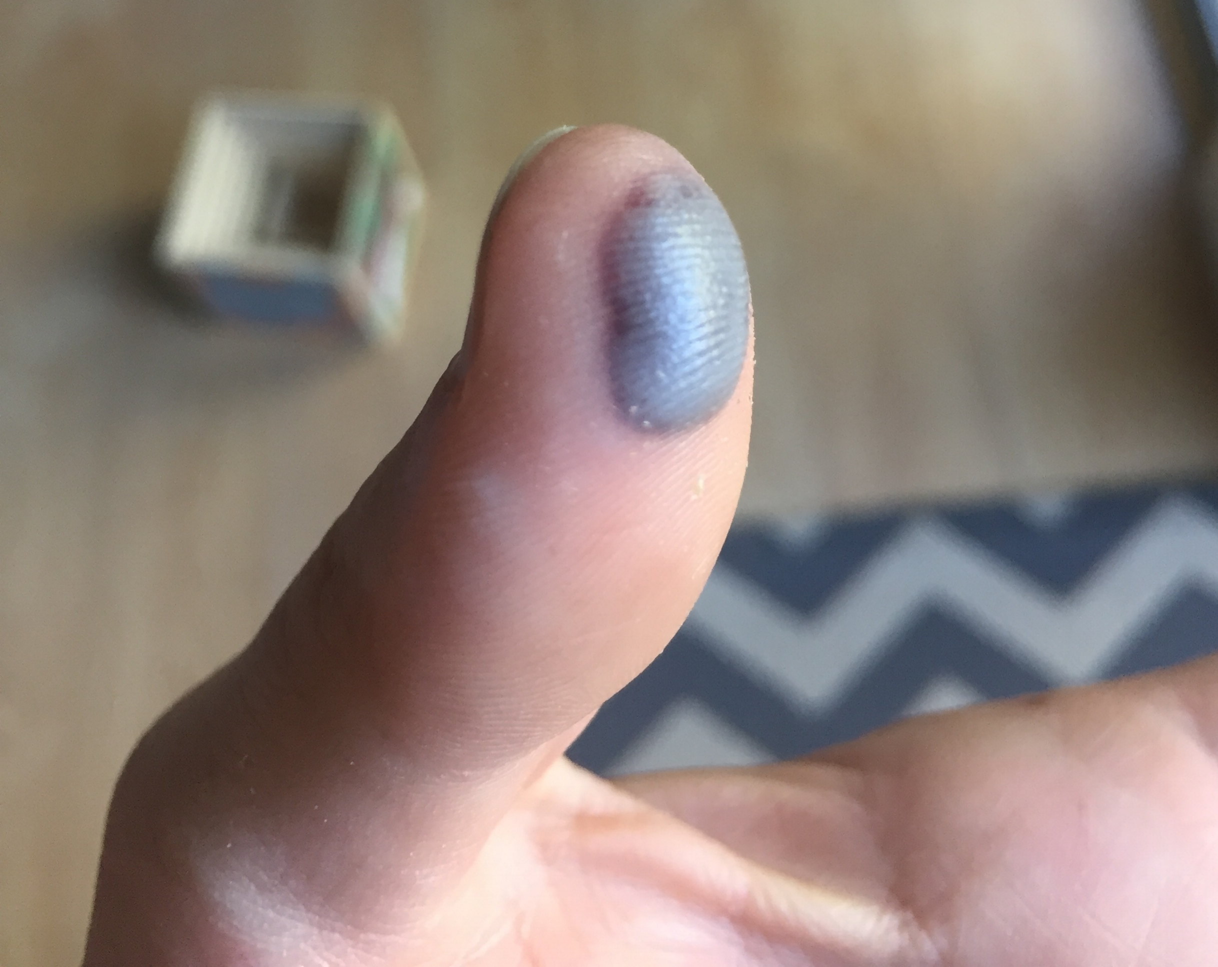 Public Service Announcement: - INVEST IN A NAIL GUN.Thankfully I did not lose my thumbnail. It was just gross and very painful. Not cool.