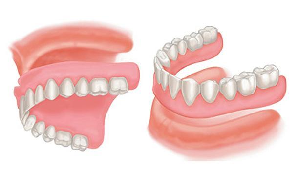 complete-dentures.jpg