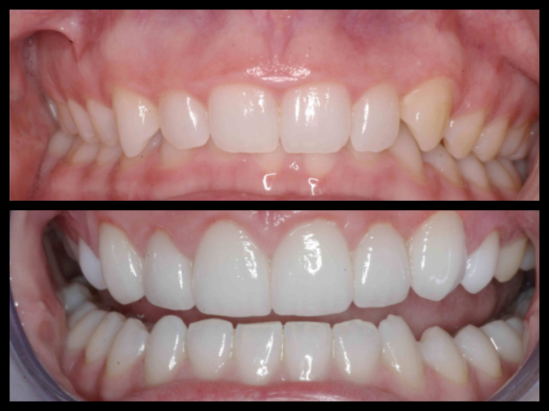 Gingiva Recontour - This patient's natural smile showed too much gum tissue in their smile. By surgically recontouring the tissue we were able expose more of the patient's natural tooth surface and give the smile they were meant to have.
