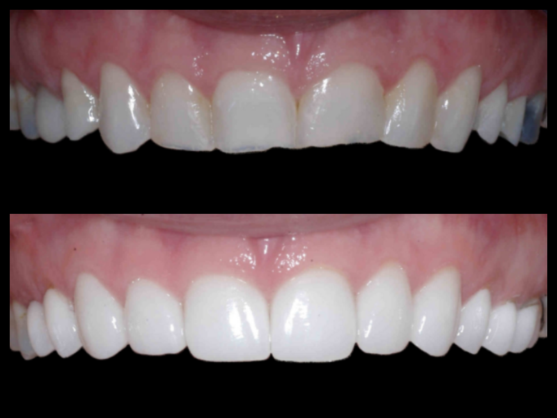 Porcelain Veneers - In this case we were able to correct the patient's wear on their teeth that left them with irregular shaped and darkened teeth. Porcelain veneers allowed us to correct the patient's smile architecture so the teeth looked more ideal.