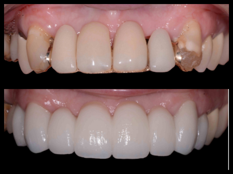 Porcelain Veneers - In this case we were able to correct the non-uniform tooth shade of restorations and also restore the missing gum tissue between teeth.