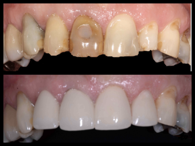 Porcelain Veneers - The front teeth had previously been discolored by trauma, infection, and failing restorations. Porcelain veneers allowed us to re-establish the uniformity in color and shape once again.