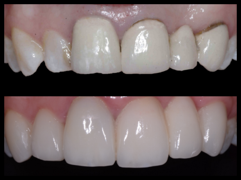 Porcelain Veneers - Older failing fillings and crowns were replaced by using porcelain veneers. We were able to achieve a uniform shape and color in the teeth but also better gingival contouring that made the front teeth look more natural.