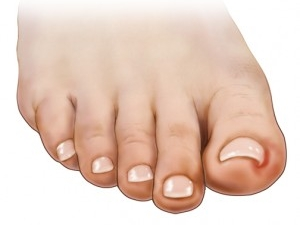 INGROWN TOENAIL -