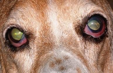 Chronic Glaucoma