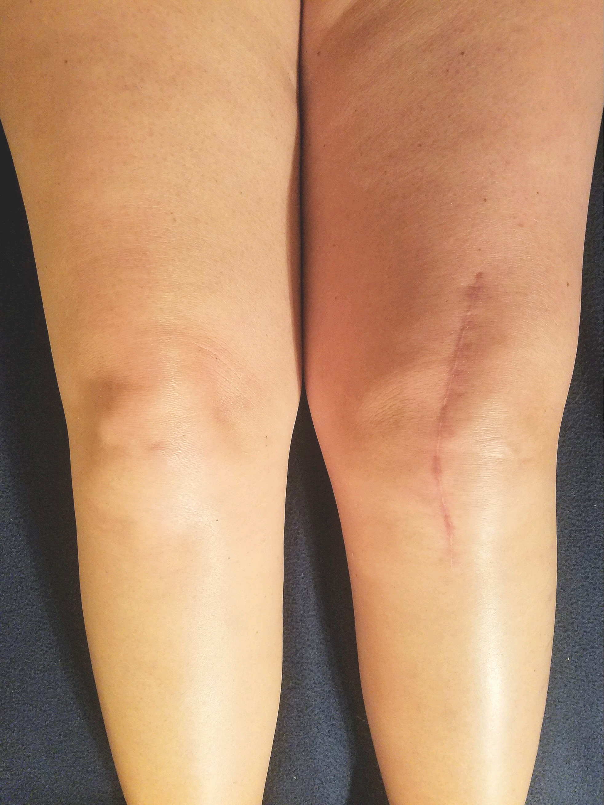 Incision length for Total Knee Arthoplasty (Knee Replacement)