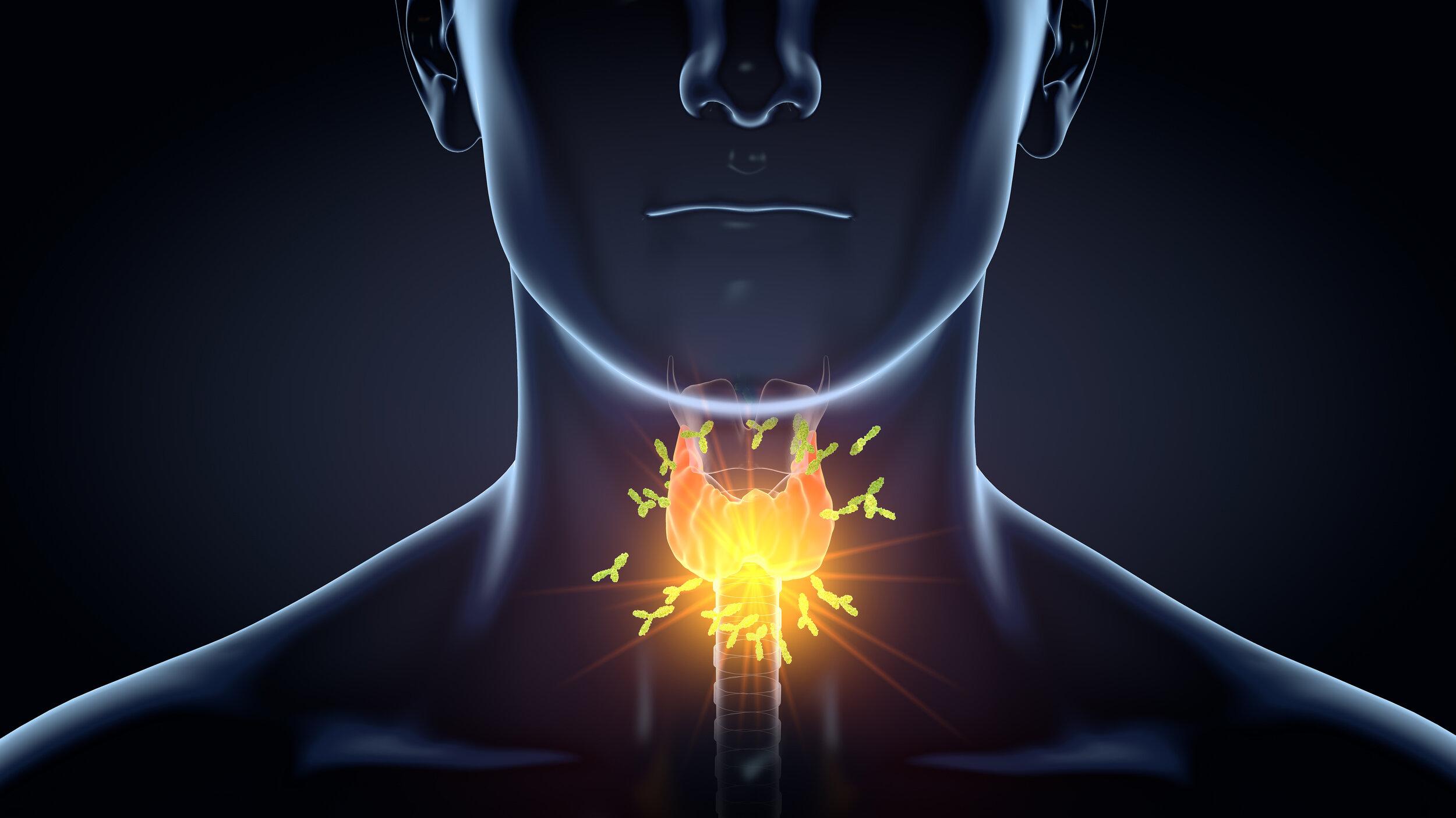 Thyroid under attack from antibodies