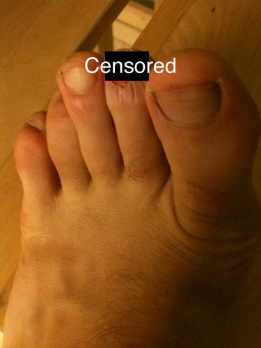 My Missing Toenail