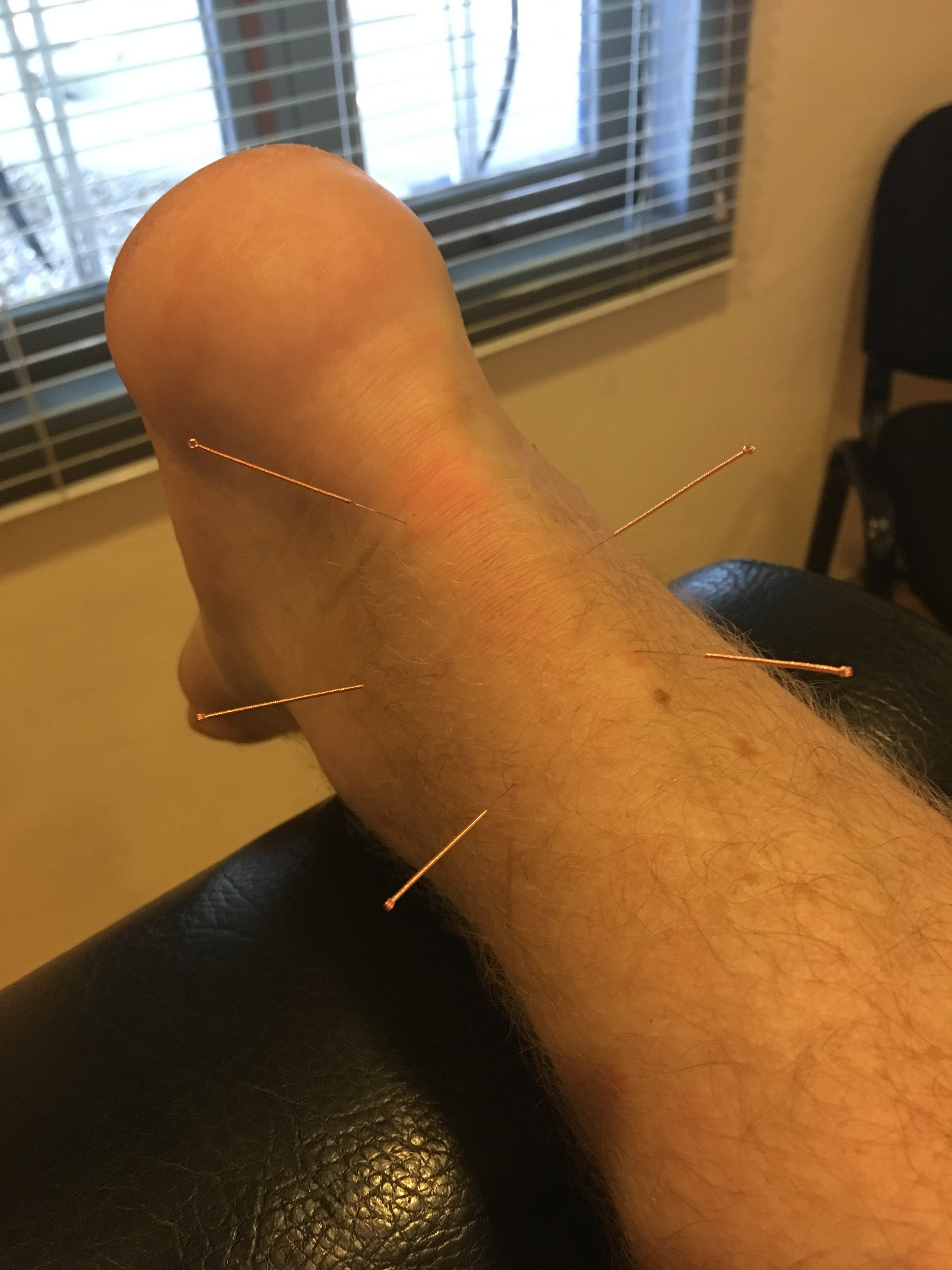 Dry needle acupuncture at the French clinic, Vientiane
