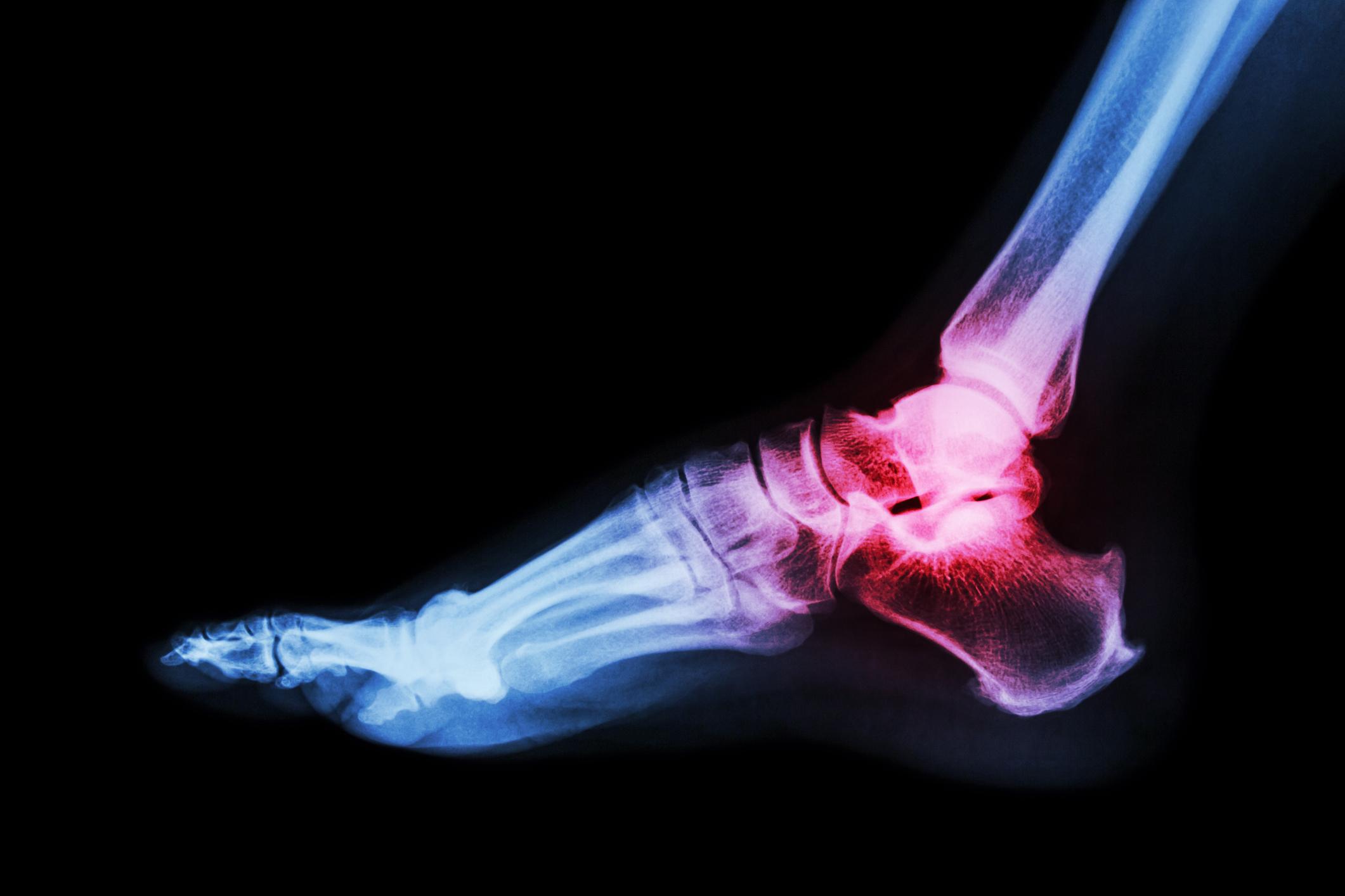 Steven L. Shapiro, MD - Savannah Orthopaedic Foot &Ankle