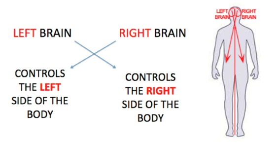 Contralateral Diagram.png