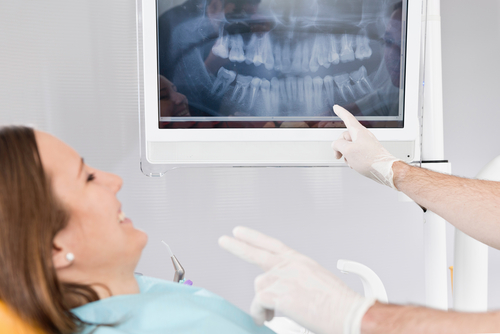 dental xrays.jpg