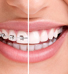 teeth--crop-u3732.jpg