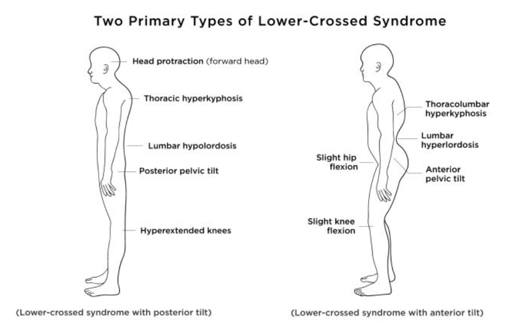lower-crossed-syndrome-yoga-ayurveda-reno.png