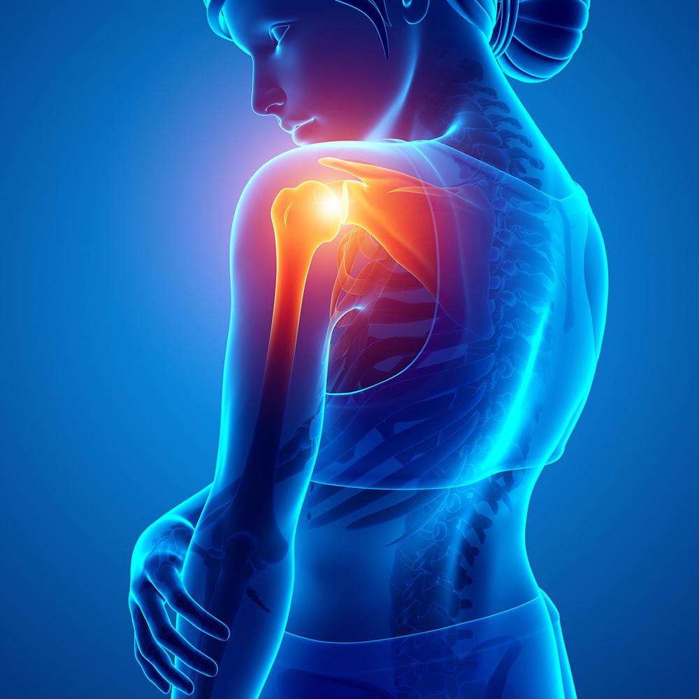 cityphysio-symptoms-upperlimb-shoulder.jpg