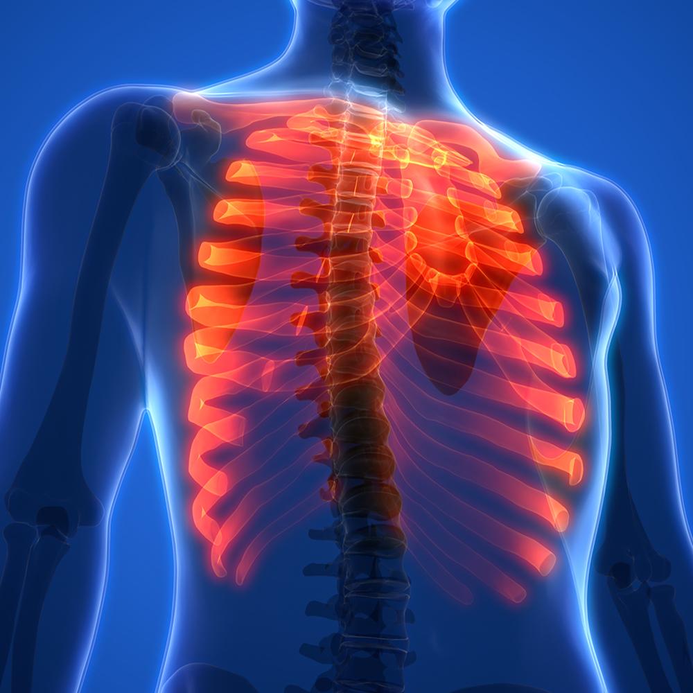 cityphysio-symptoms-midback-ribpain.jpg