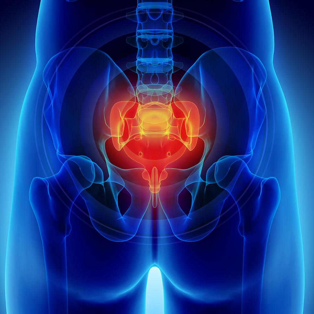 cityphysio-symptoms-lowerbackhip-pelvis.jpg