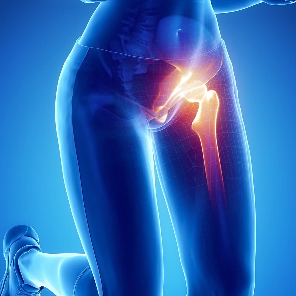 cityphysio-symptoms-lowerbackhip-hips.jpg
