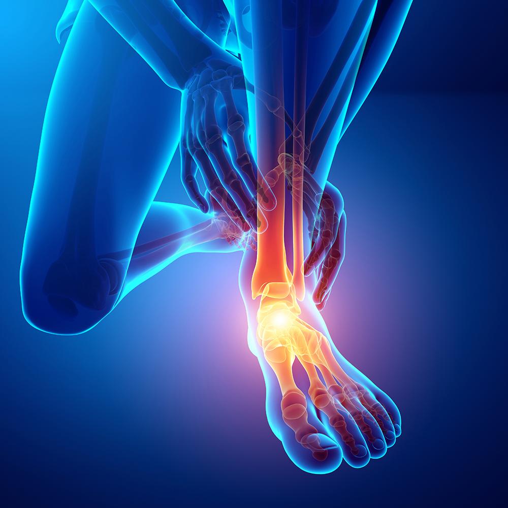 cityphysio-symptoms-lowerlimbs-footankle.jpg