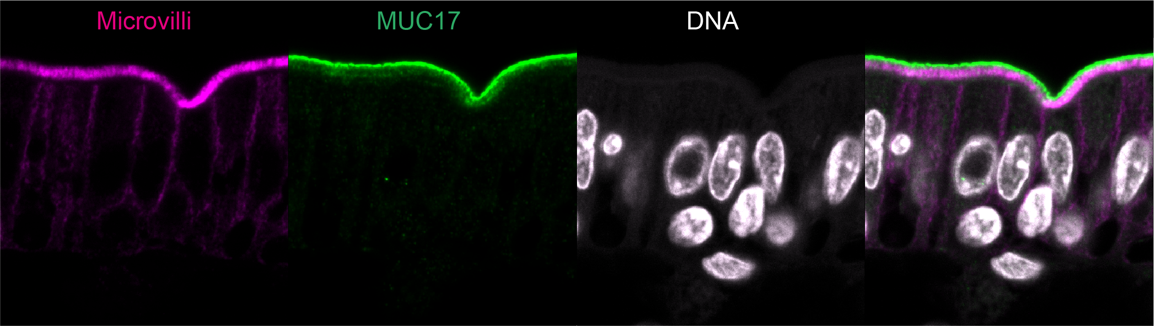 Membrane mucin MUC17 (green) is anchored to the outer tip of apical microvilli (magenta) on enterocytes in the human intestines.