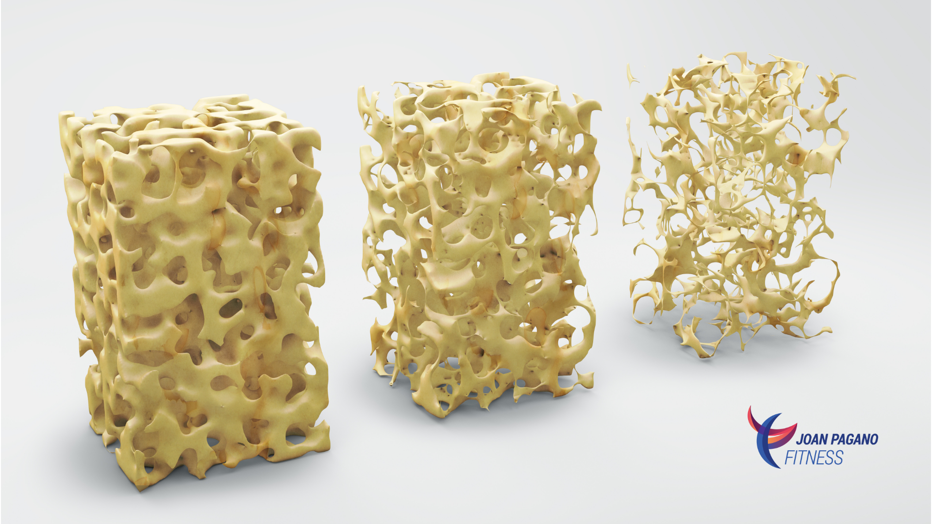 Degrees of bone density: normal, osteopenia, osteoporosis