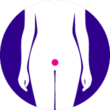 Endometrial Cancer - The most common gynecological malignancy. Up to 90% of patients express the progesterone receptor.It is estimated that there are over 200,000 patients with recurrent disease worldwide.