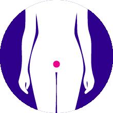 PR+ Rare Ovarian Cancers