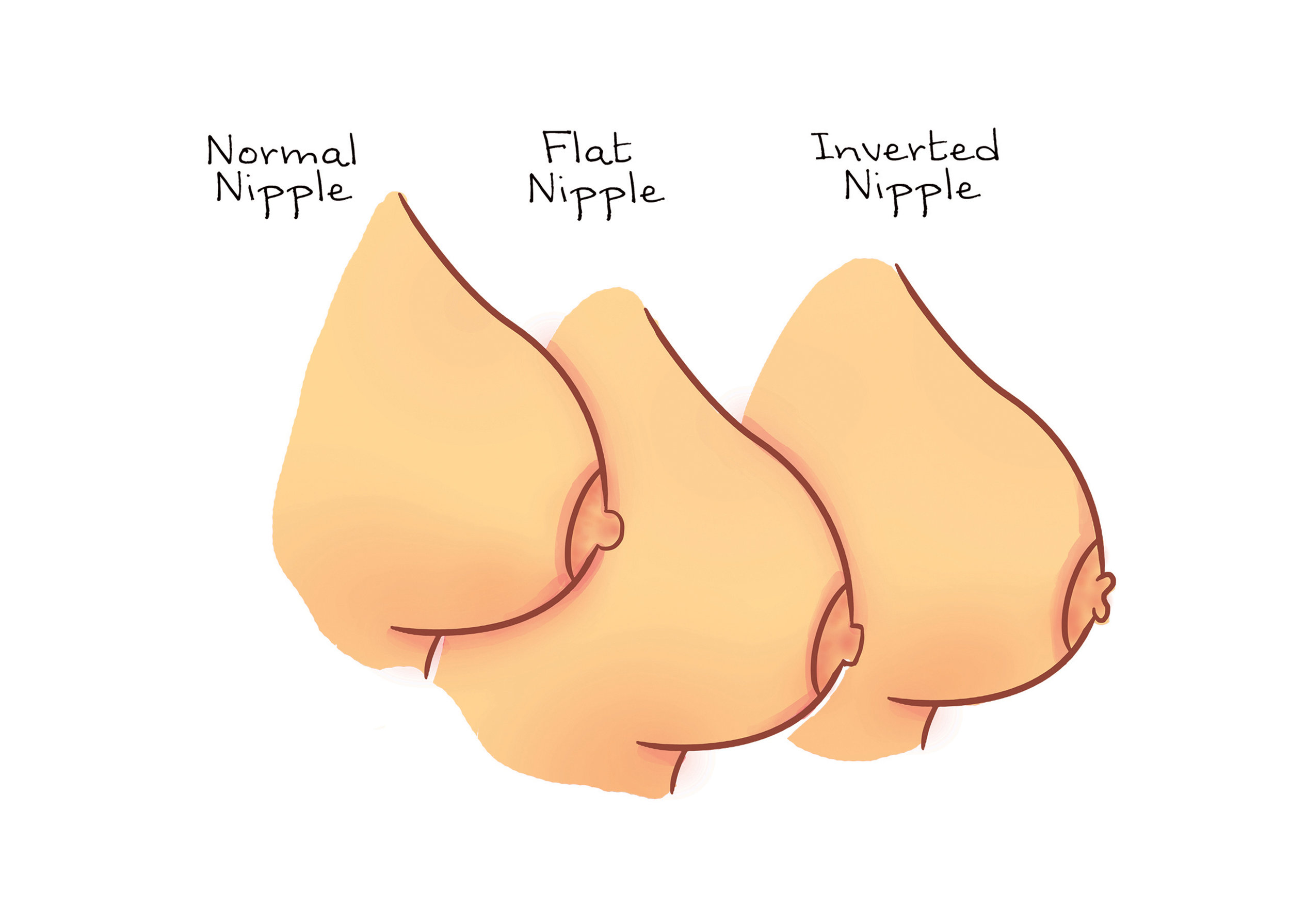 Image result for Flat and Inverted Nipple