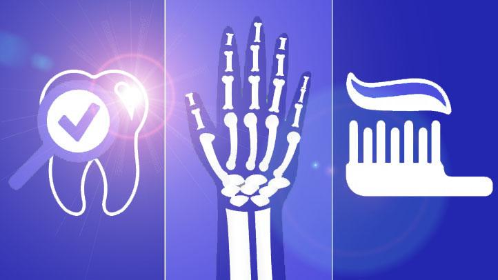 Rheumatoid Arthritis -