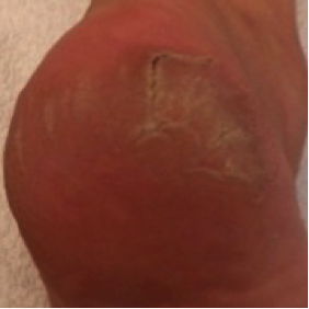 Initial Condition  at 16 Oct 2011  (Initial Treatment)