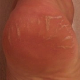 Condition 9 Days Later  with regular use of the Footlogix products.