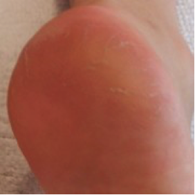 Condition 4 Weeks Later  with regular use of the Footlogix products.