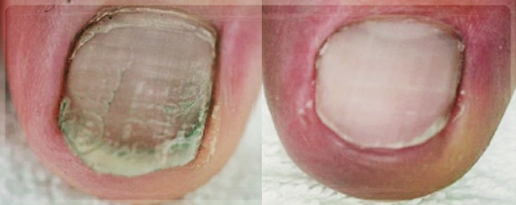 BEFORE/AFTER   (2 weeks PACT treatment)