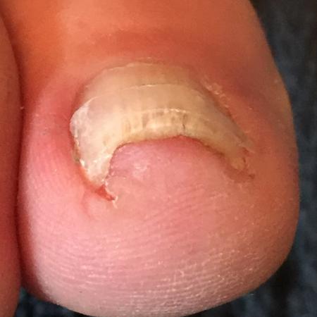 Right Foot: Third Visit, Sept 2016