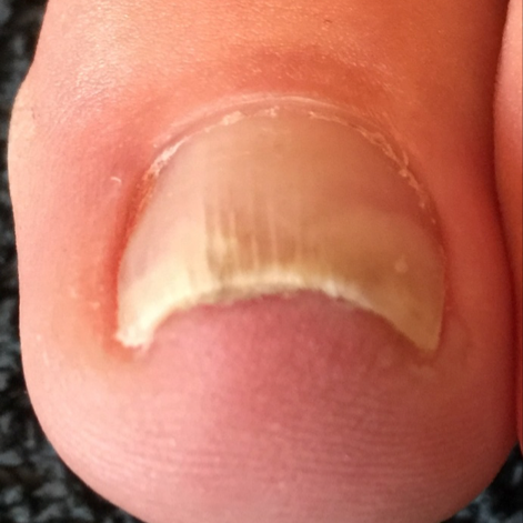 Left Foot: Third Visit, Sept 2016