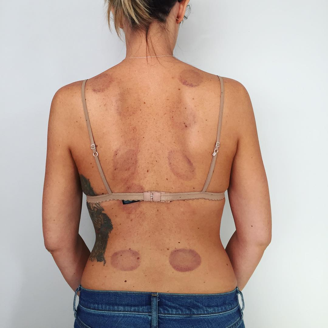 Holistic Nutritionist Toronto Cupping