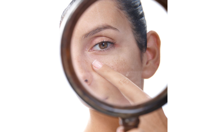 skin-lesion-remove-13180162_l-700x460.jpg