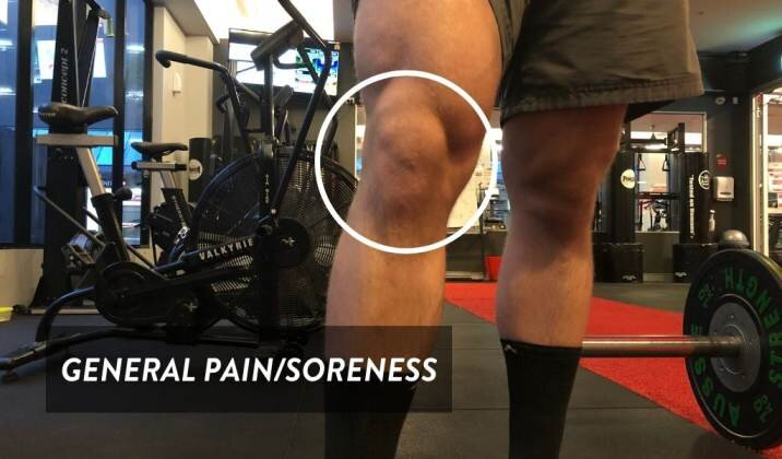 Generalized knee pain while deadlifting