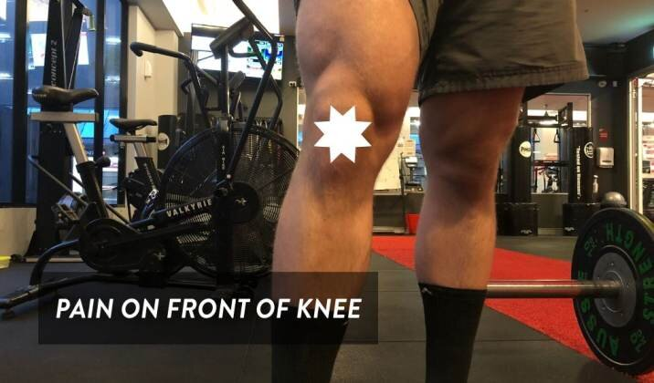 Anterior knee pain is when you get pain on the front of the knee when deadlifting