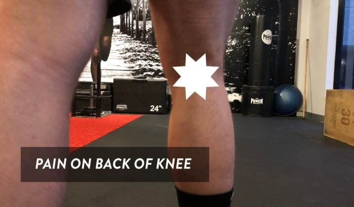 Posterior knee pain is pain on the back of the knee when deadlifting