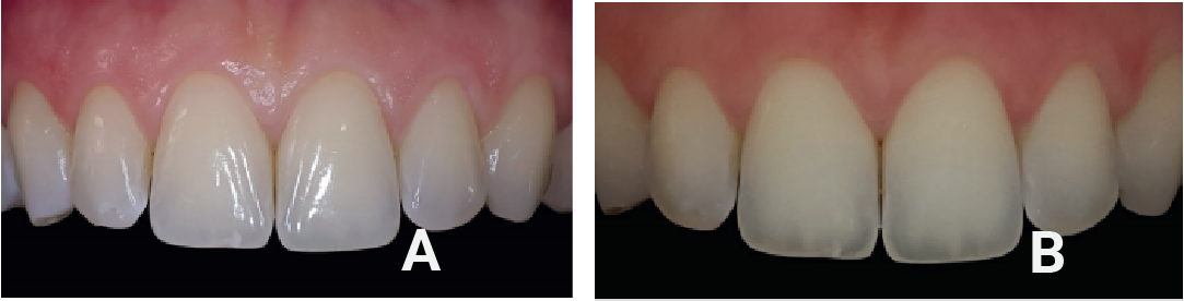 (A) Picture we take for current tooth structure and shade (B) Picture we take with polarization to allow us to see opacity of tooth and mimic nature when we create your custom veneer/crown.